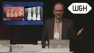 Mise en charge précoce des implants avec élévation de sinus