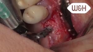 Piezomed – Sinuslift 26, Chirurg Dr. Böhm, Barcelona, Spanien