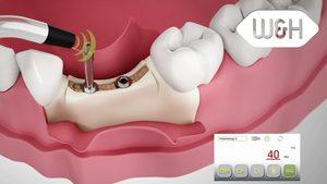 Piezomed – alveolar ridge extension and removal of bone mass