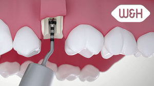 Piezomed – implant site preparation with subsequent implantation