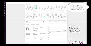 Osstell Connect - Comment modifier les données sur l